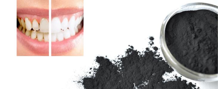 Charbon actif pour se blanchir les dent